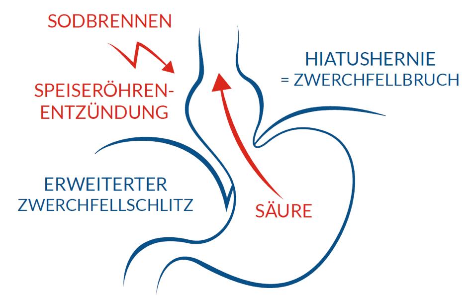GERD Pathophysiologie - Antireflux.info